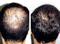 Micro greffes de cheveux