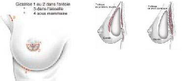 Implants et Prothèses mammaires